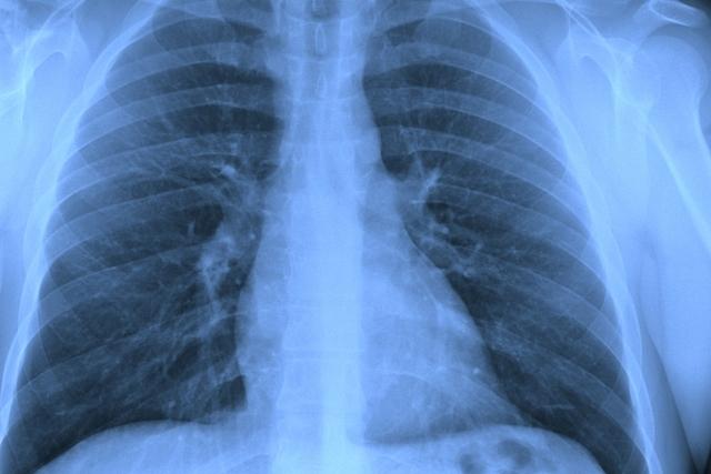 pulmão crítico dia mundial