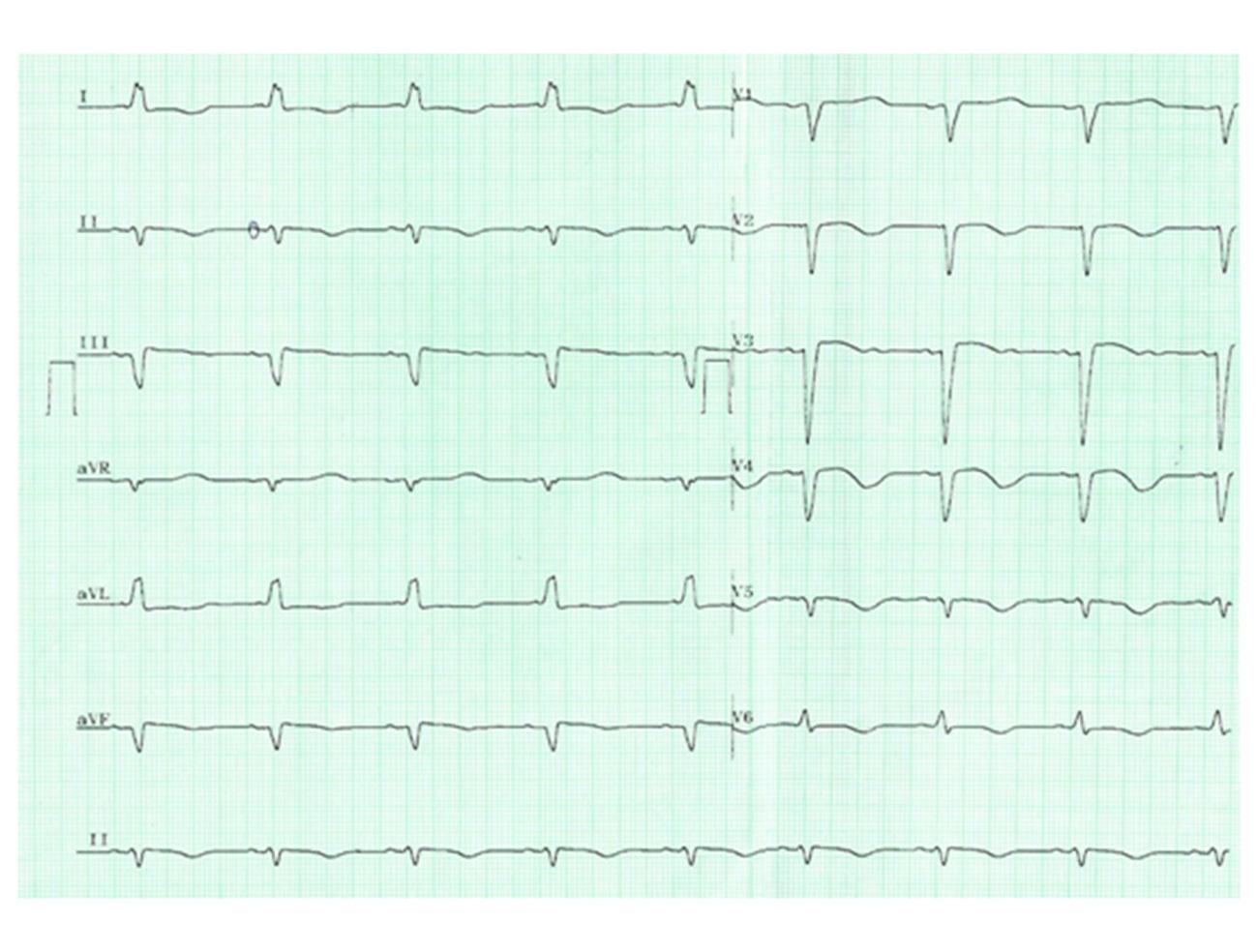 ECG--Eletrocardiograma-na-Prática