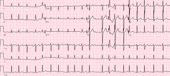ECG - Eletrocardiograma na Emergência.