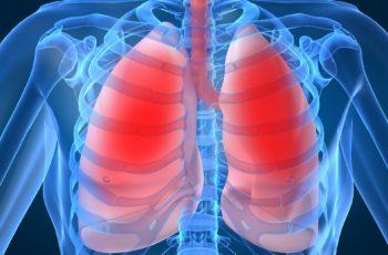 pulmão crise asmática