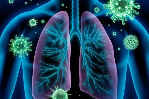 Síndrome Respiratória